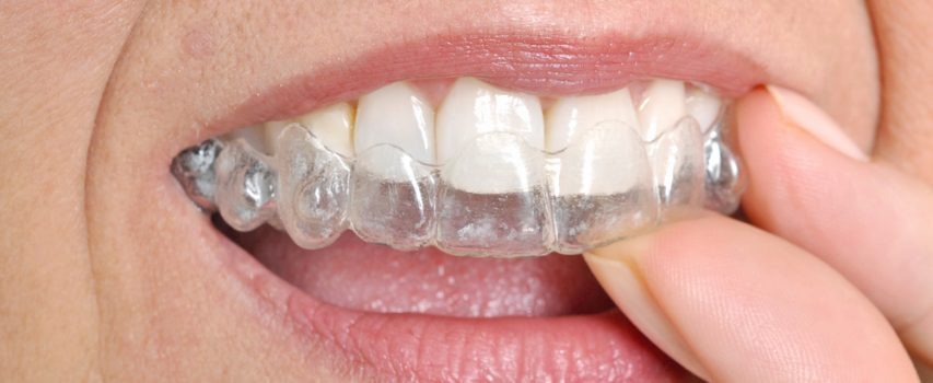 3 Types Of Braces For Perfect Teeth