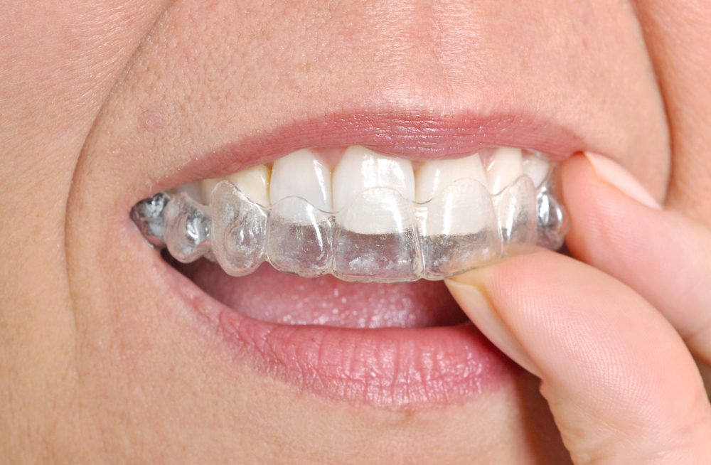 types-of-braces-Dumas-TX-body